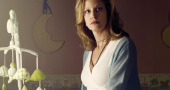 Anna Gunn struggling with Lupus which explains character issues